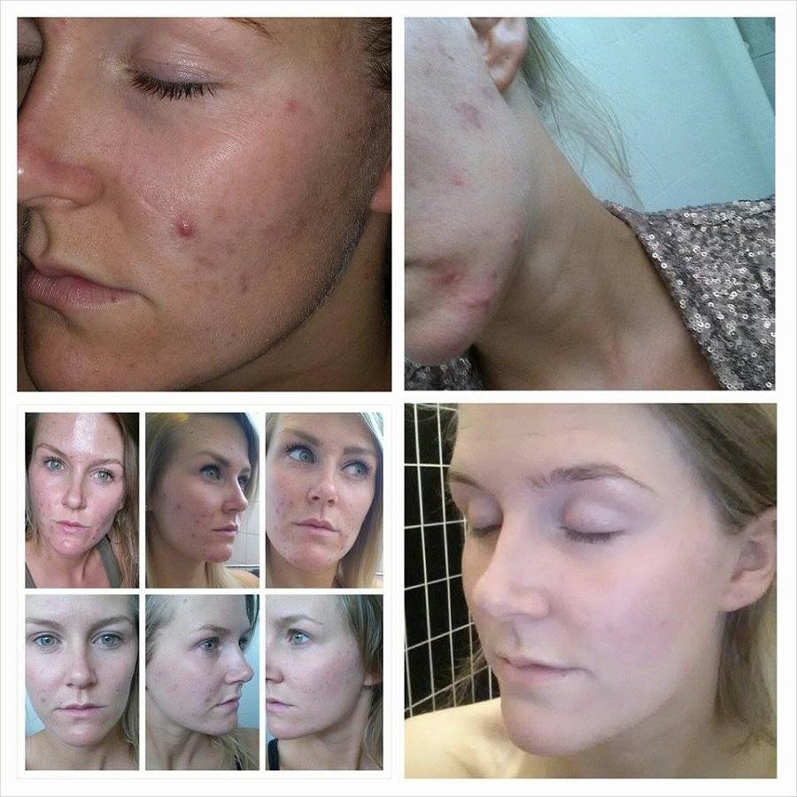 huidprobleem oplossen declare